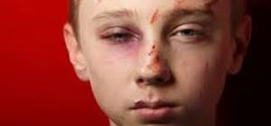 Frank Houston's abuse of these boys didn't leave scars. It was physical and it did leave scars in their minds and bides. we just can't see them. They're actually worse scars because they went far deeper than skin.